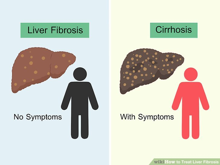 How to Treat Liver Fibrosis