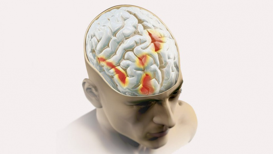 Mild zaps to the brain can boost a pain-relieving placebo effect